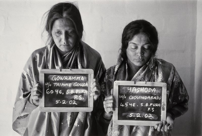 black and white image of two women with downcast eyes, each holding a chalkboard with writing in front of their bodies; woman at L has a scar near her PR eye