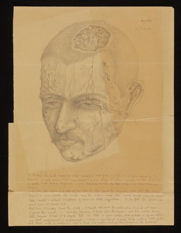 image on darkened yellowed paper; male figure's head with mustache and short hair gazes downward; small pocks/ holes scattered across face with thinly drawn veins/ vessels creeping down the face; large hole in the scalp of figure, exposing a bumpy surface with more pocks/ holes and veins; block of hand written text on lower third of paper